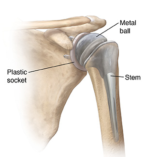 Front view of shoulder joint with total shoulder replacement.